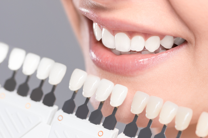 affordable dental implants sydney